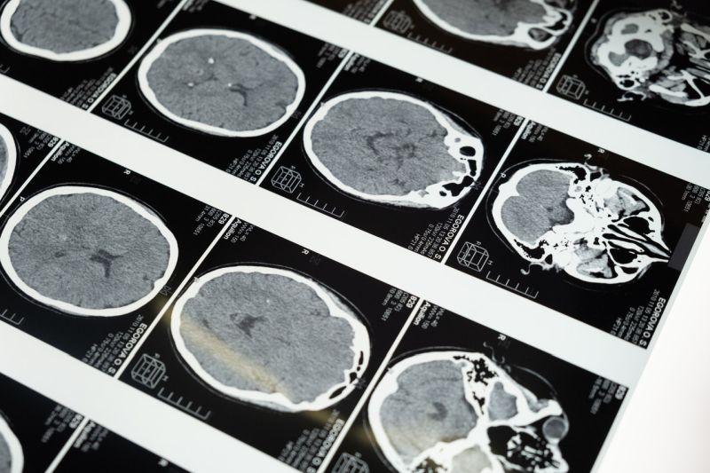 Bolile neurologice. Ce sunt și cum le diagnosticăm?